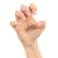 claw-hand
